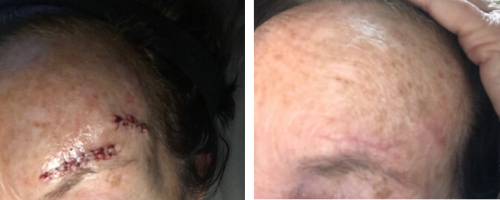 e3's Caryn shares her experience with using carrier oils and essential oils for scar massage as she shares the process of healing from skin cancer surgery.